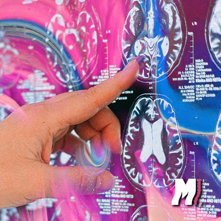 hongos-danan-el-cerebro